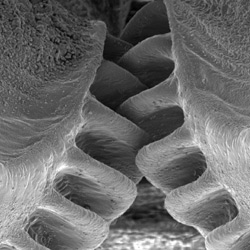 Gear teeth at the top of each hind leg of the plant hopper Issus coleoptratus. Photo © Malcolm Burrows 2013 (CC BY-NC-SA 3.0)