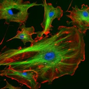 Fluorescent phalloidin (red) marking actin filaments in endothelial cells. Uploaded to Wikimedia Commons by Splette, 2006 (Public Domain)