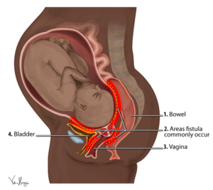 Obstetric_Fistula_Locations_Diagram
